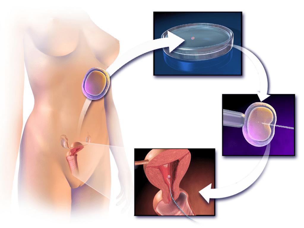 人工受孕的過程示意圖,圖片來源:Wikimedia。